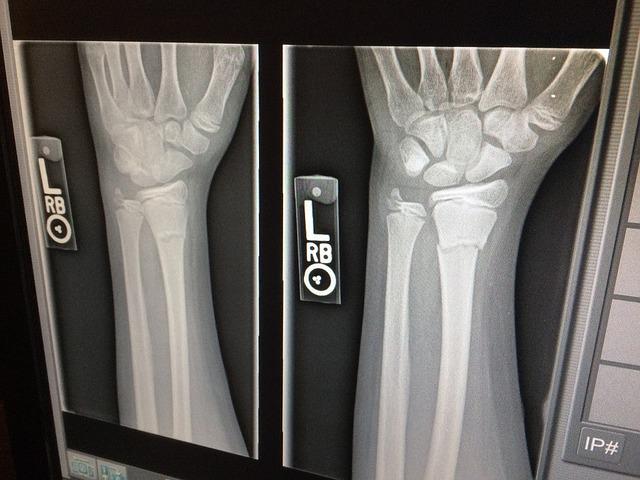 fracture causée par l'osteoporose, maladie du squelette